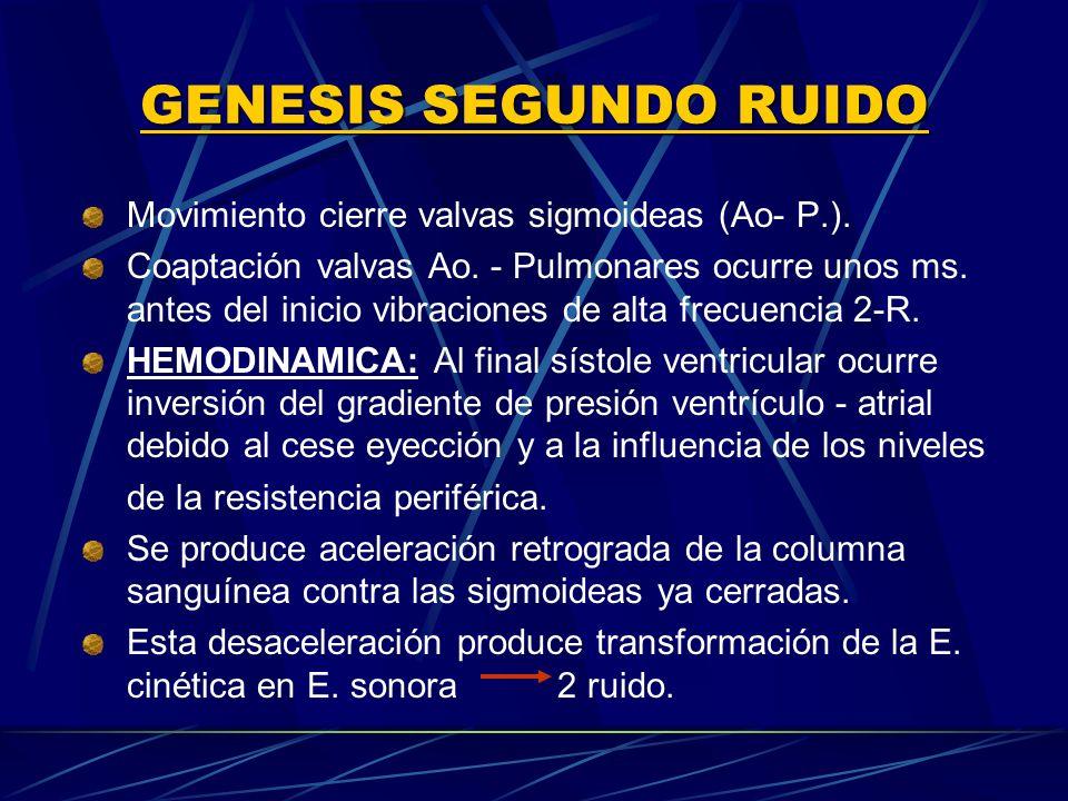 GENESIS SEGUNDO RUIDO Movimiento cierre valvas sigmoideas (Ao‑ P.).