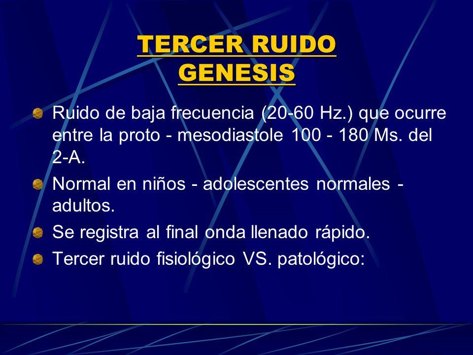 TERCER RUIDO GENESIS Ruido de baja frecuencia (20‑60 Hz.) que ocurre entre la proto - mesodiastole 100 ‑ 180 Ms. del 2‑A.