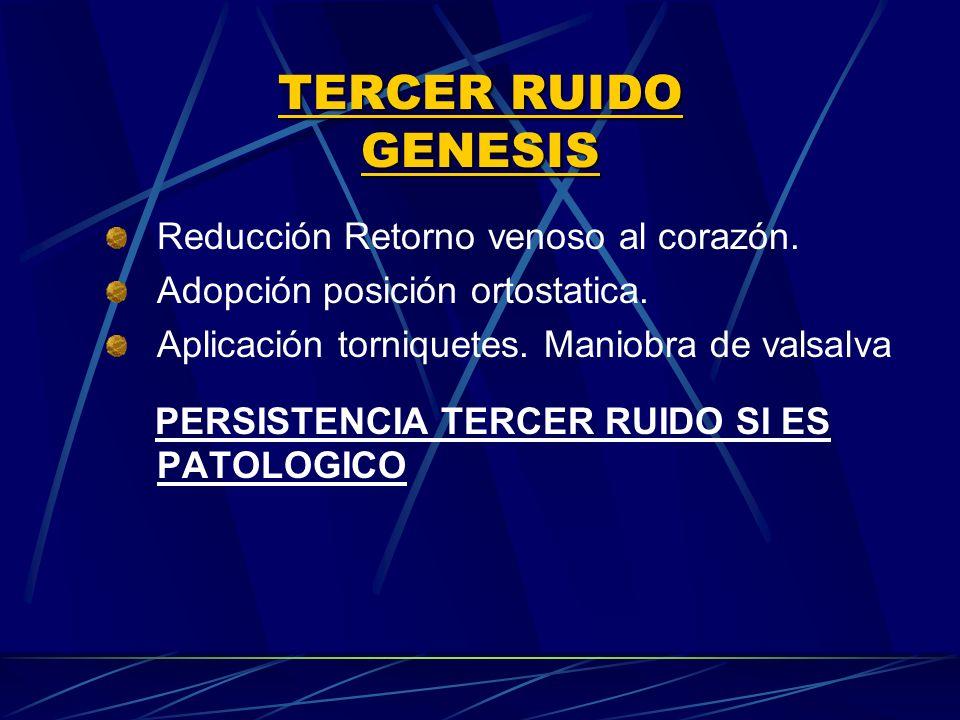 TERCER RUIDO GENESIS Reducción Retorno venoso al corazón.