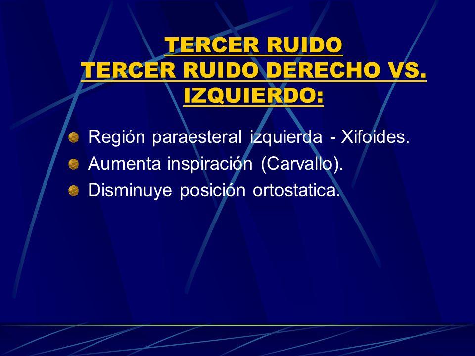 TERCER RUIDO TERCER RUIDO DERECHO VS. IZQUIERDO: