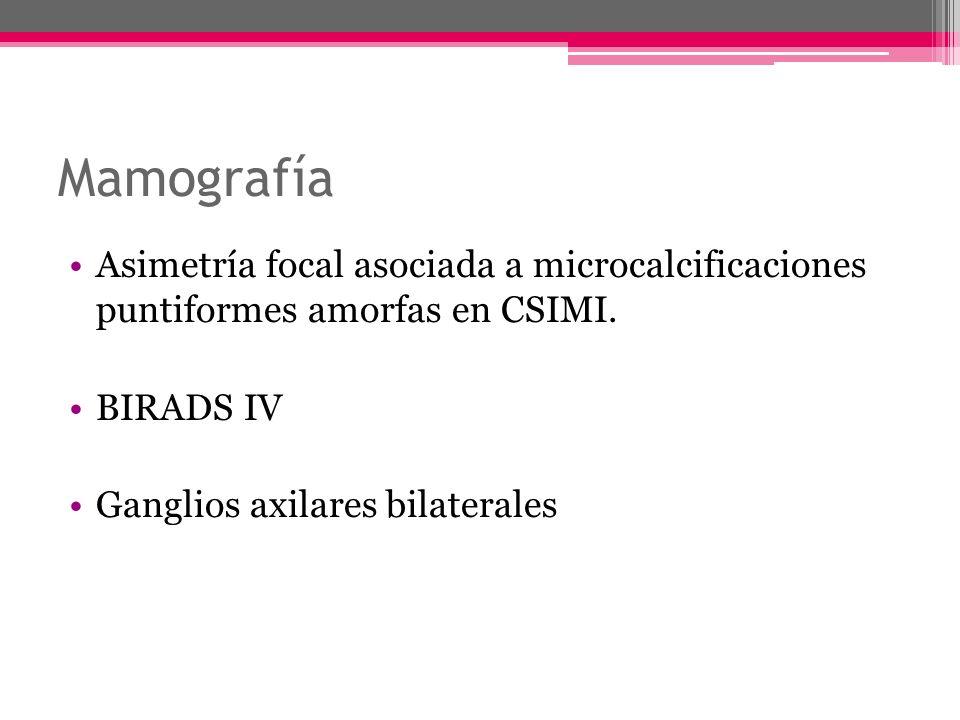 Mamografía Asimetría focal asociada a microcalcificaciones puntiformes amorfas en CSIMI. BIRADS IV.