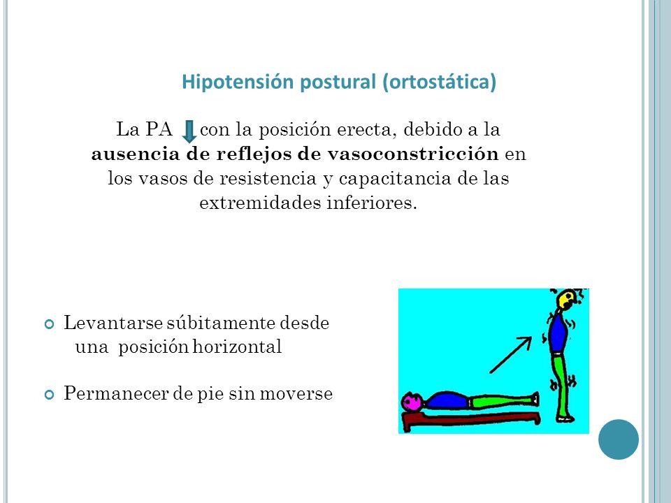 Hipotensión postural (ortostática)