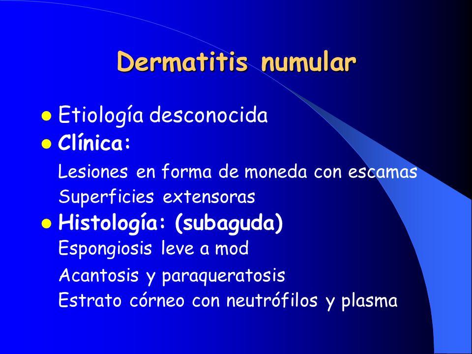 Dermatitis numular Etiología desconocida Clínica: