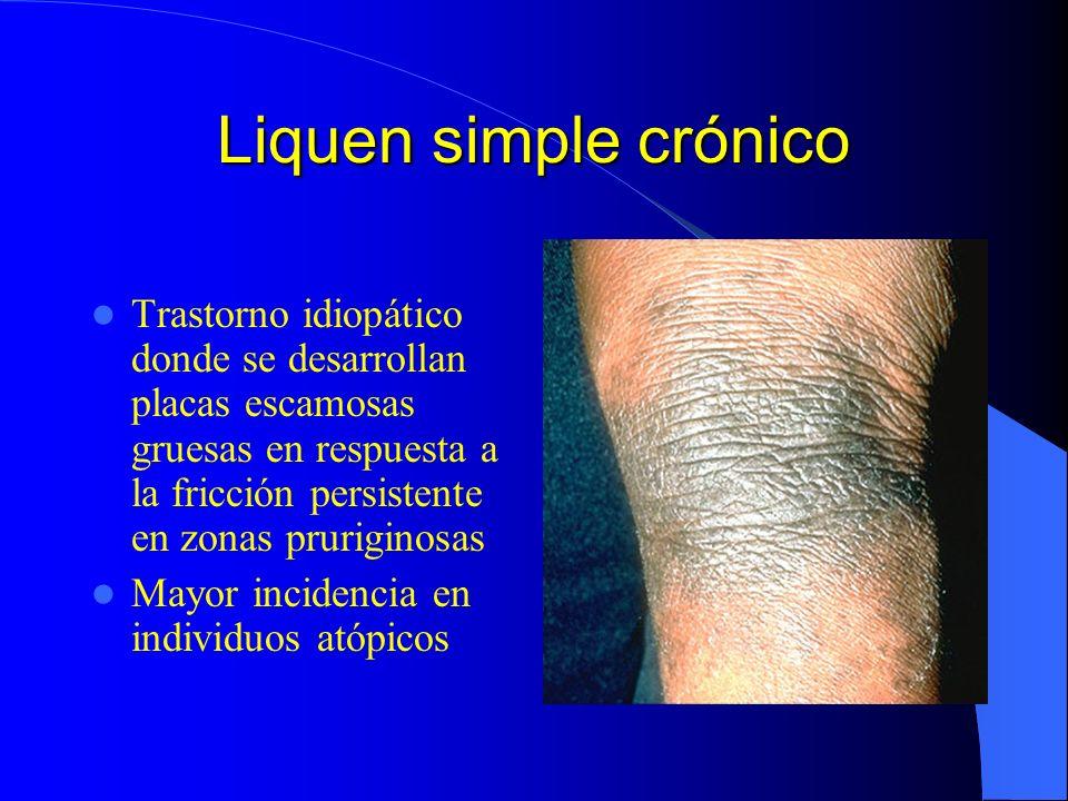 Liquen simple crónico Trastorno idiopático donde se desarrollan placas escamosas gruesas en respuesta a la fricción persistente en zonas pruriginosas.