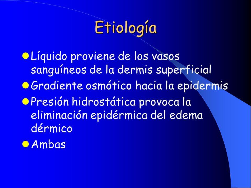 Etiología Líquido proviene de los vasos sanguíneos de la dermis superficial. Gradiente osmótico hacia la epidermis.
