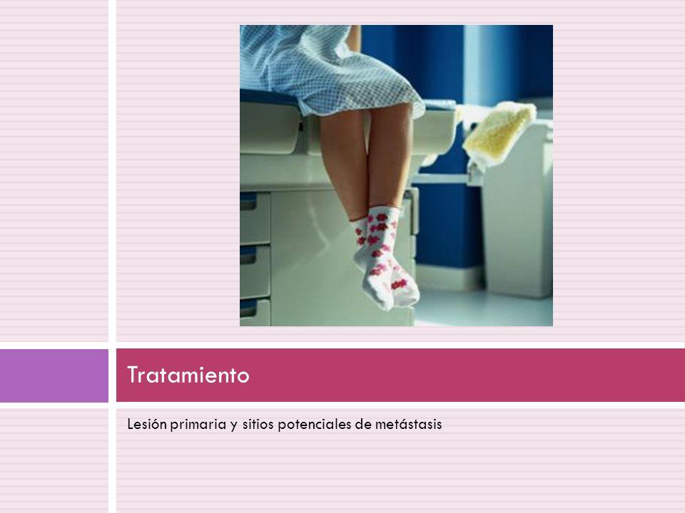 Tratamiento Lesión primaria y sitios potenciales de metástasis