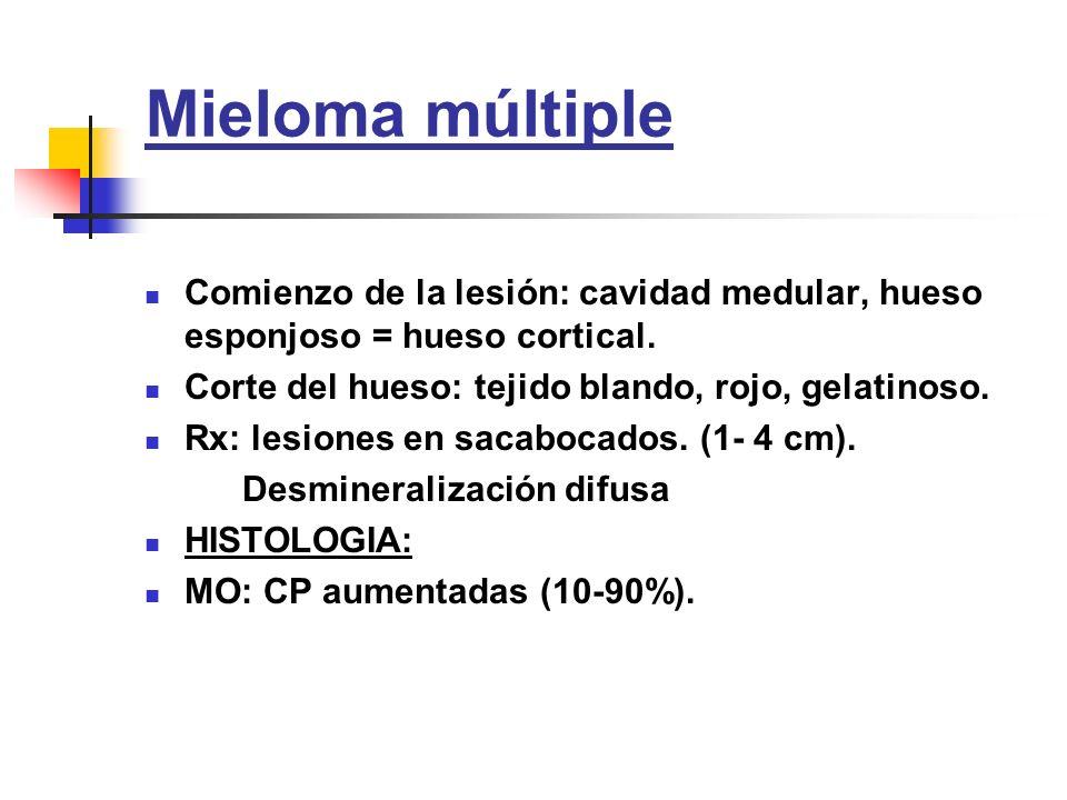 Mieloma múltiple Comienzo de la lesión: cavidad medular, hueso esponjoso = hueso cortical. Corte del hueso: tejido blando, rojo, gelatinoso.