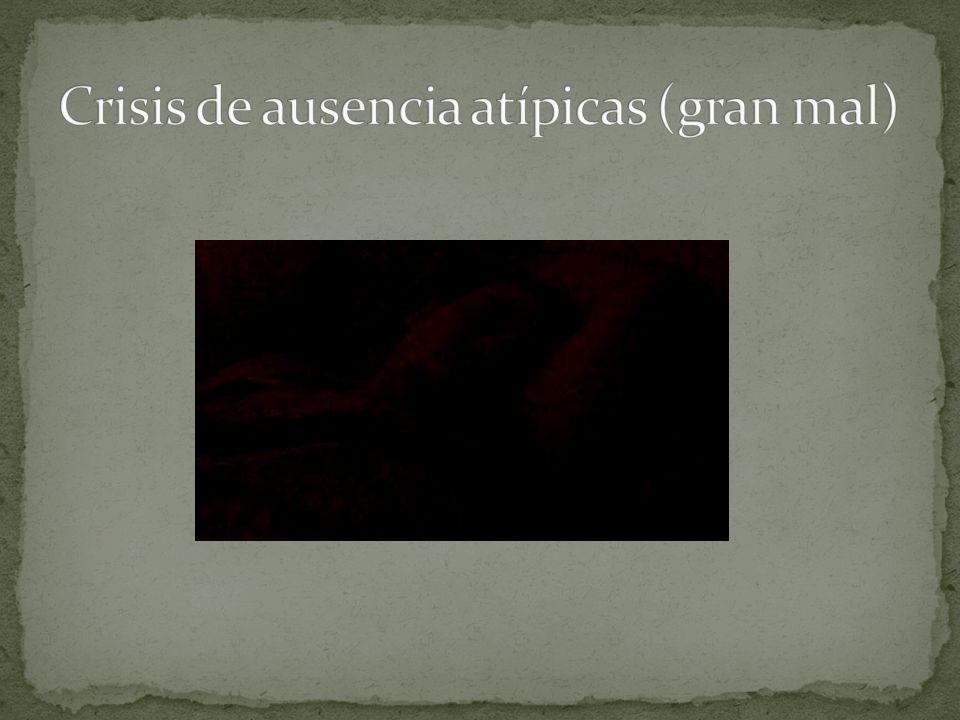 Crisis de ausencia atípicas (gran mal)