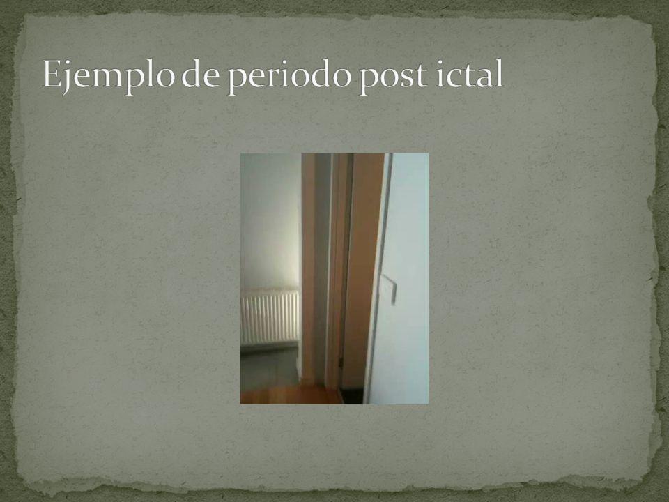 Ejemplo de periodo post ictal
