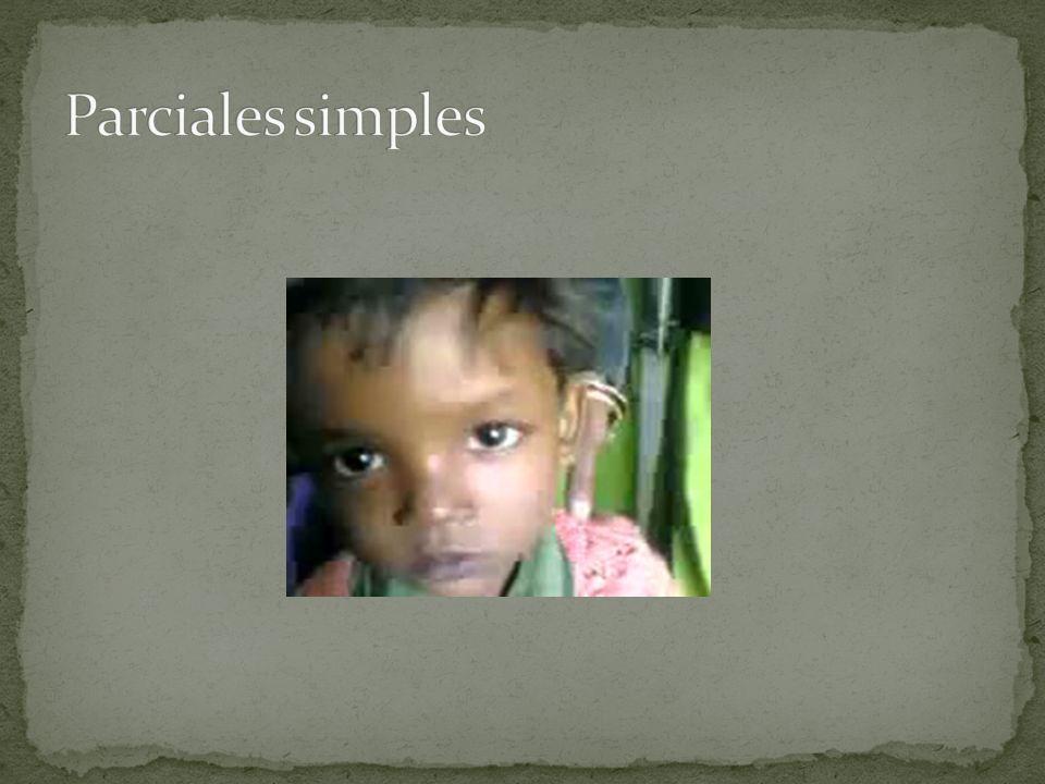 Parciales simples