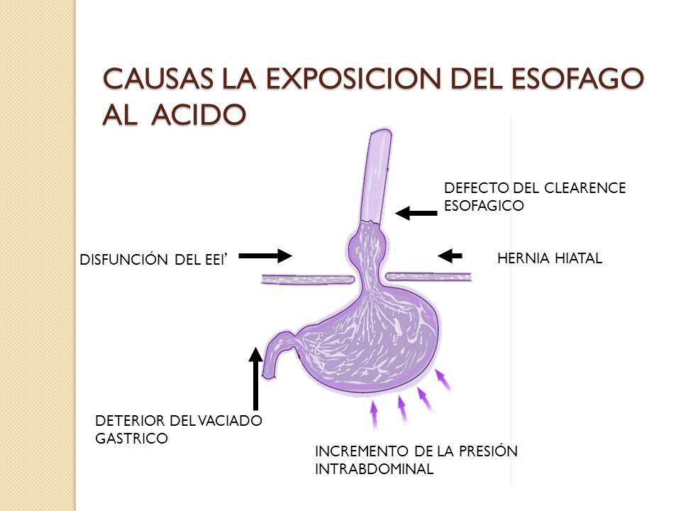 CAUSAS LA EXPOSICION DEL ESOFAGO AL ACIDO