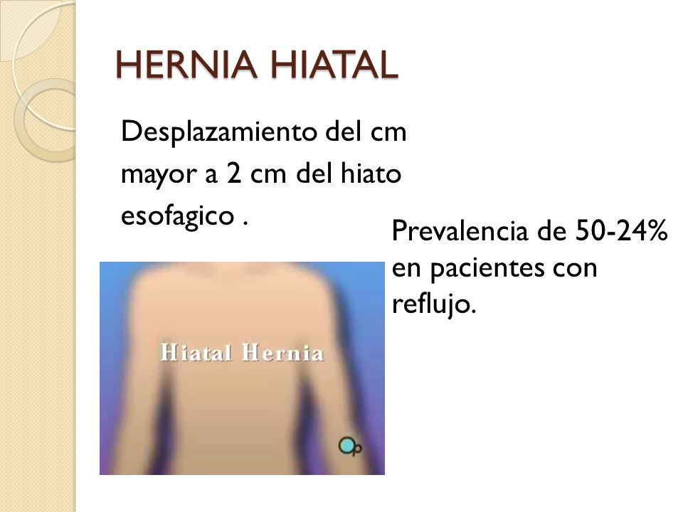 HERNIA HIATAL Desplazamiento del cm mayor a 2 cm del hiato esofagico .