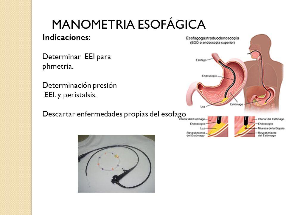 MANOMETRIA ESOFÁGICA Indicaciones: Determinar EEI para phmetria.
