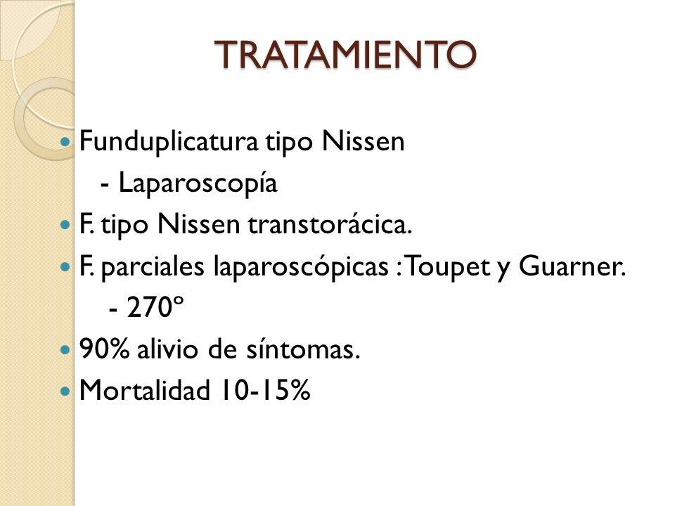 TRATAMIENTO Funduplicatura tipo Nissen - Laparoscopía