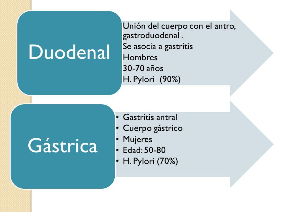 Duodenal Unión del cuerpo con el antro, gastroduodenal . Se asocia a gastritis. Hombres. 30-70 años.
