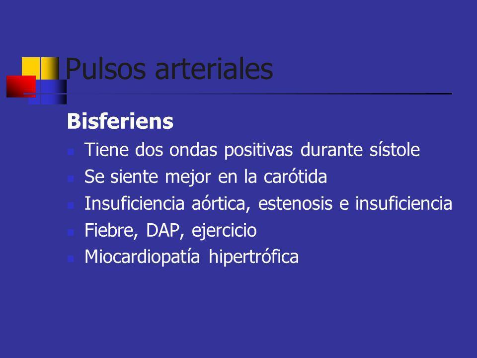 Pulsos arteriales Bisferiens Tiene dos ondas positivas durante sístole