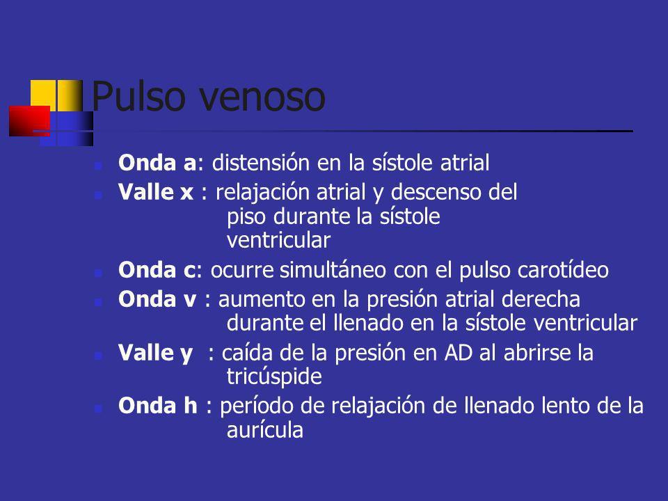 Pulso venoso Onda a: distensión en la sístole atrial