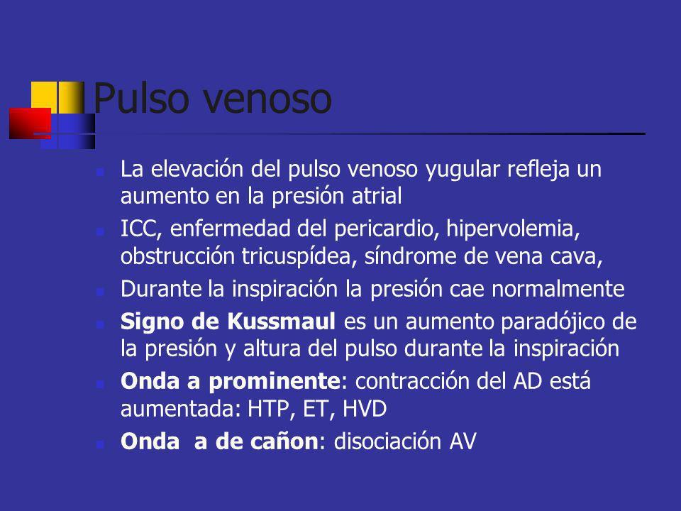 Pulso venoso La elevación del pulso venoso yugular refleja un aumento en la presión atrial.