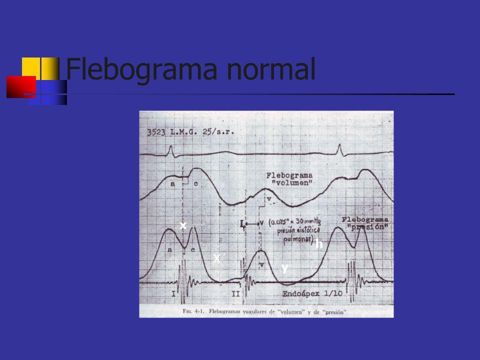 Flebograma normal x h X´ y