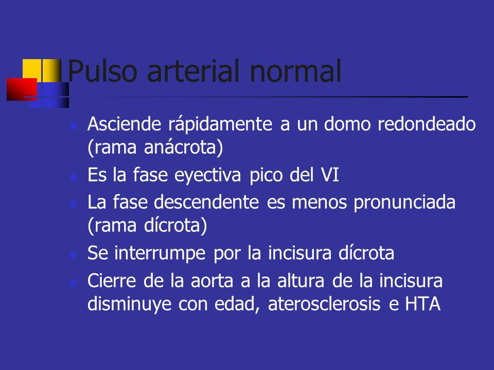 Pulso arterial normalAsciende rápidamente a un domo redondeado (rama anácrota) Es la fase eyectiva pico del VI.