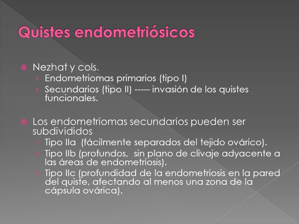 Quistes endometriósicos