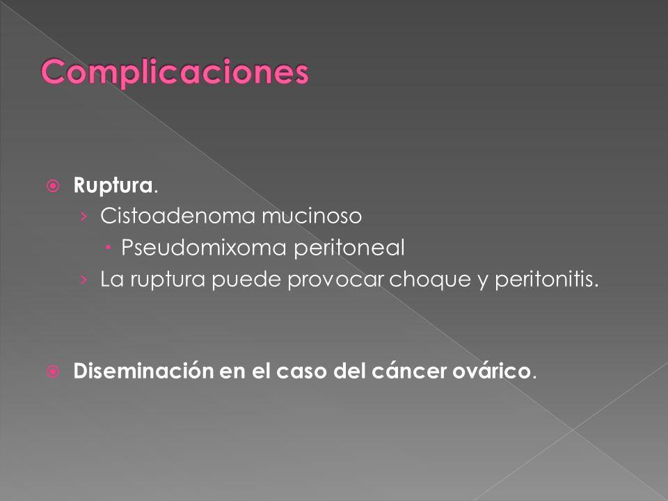 Complicaciones Pseudomixoma peritoneal Ruptura. Cistoadenoma mucinoso
