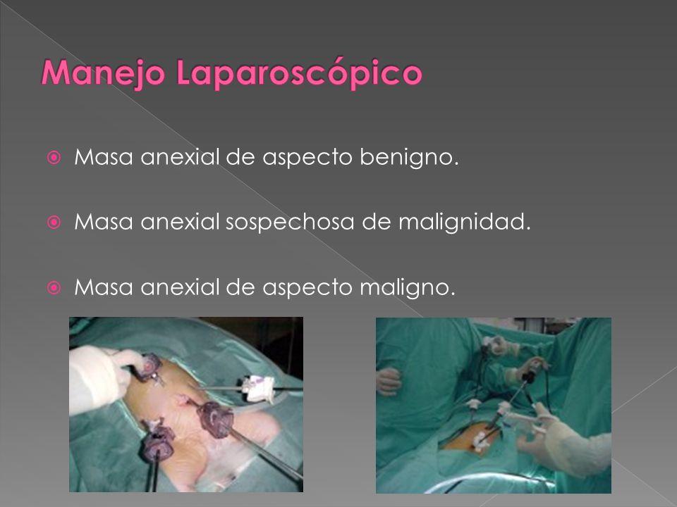 Manejo Laparoscópico Masa anexial de aspecto benigno.