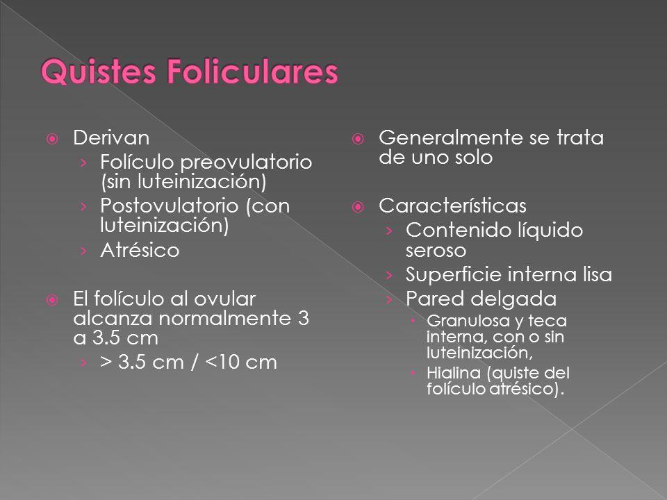 Quistes Foliculares Derivan Folículo preovulatorio (sin luteinización)