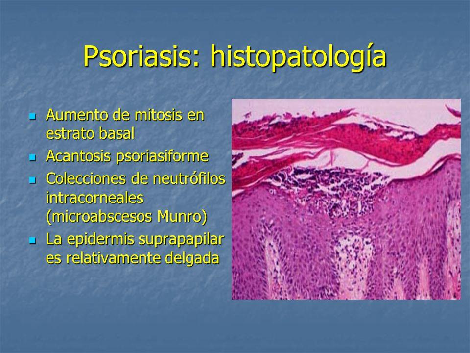 Psoriasis: histopatología