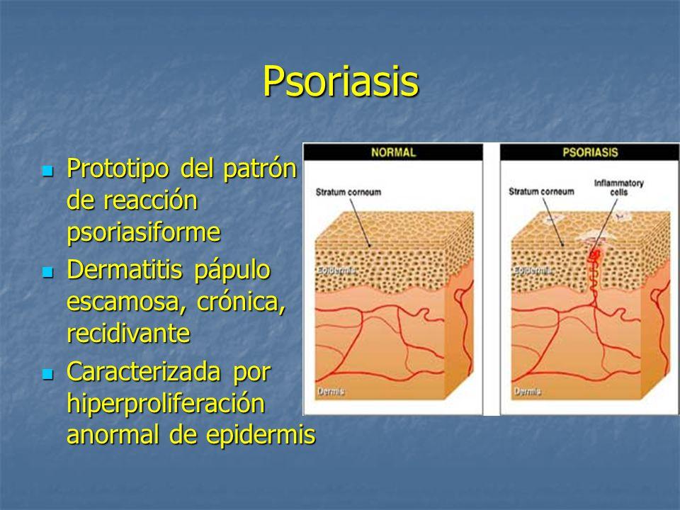Psoriasis Prototipo del patrón de reacción psoriasiforme