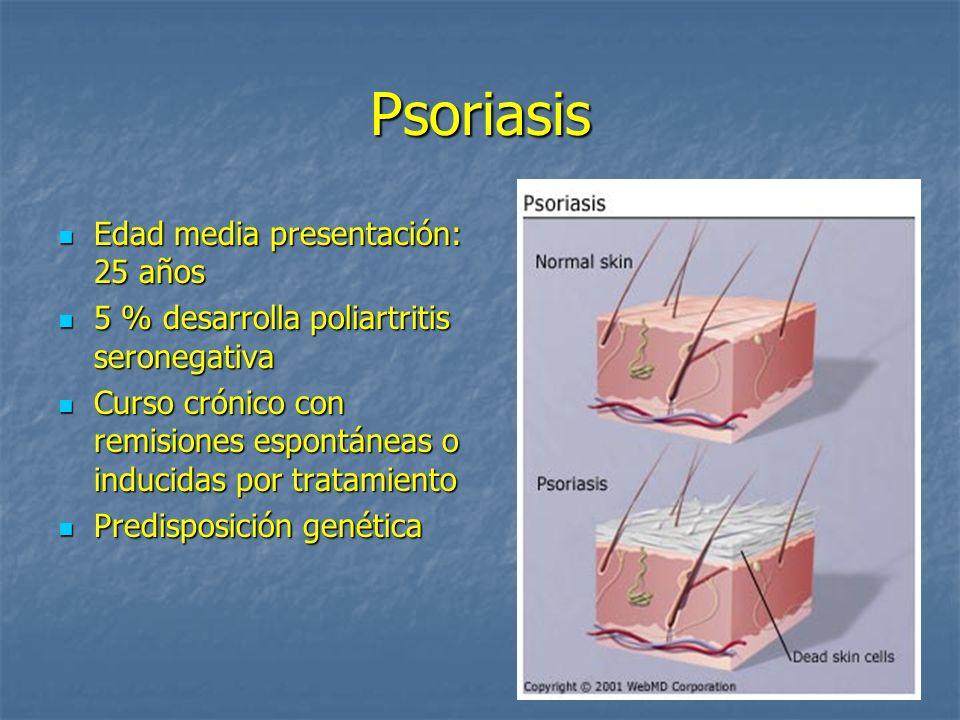 Psoriasis Edad media presentación: 25 años