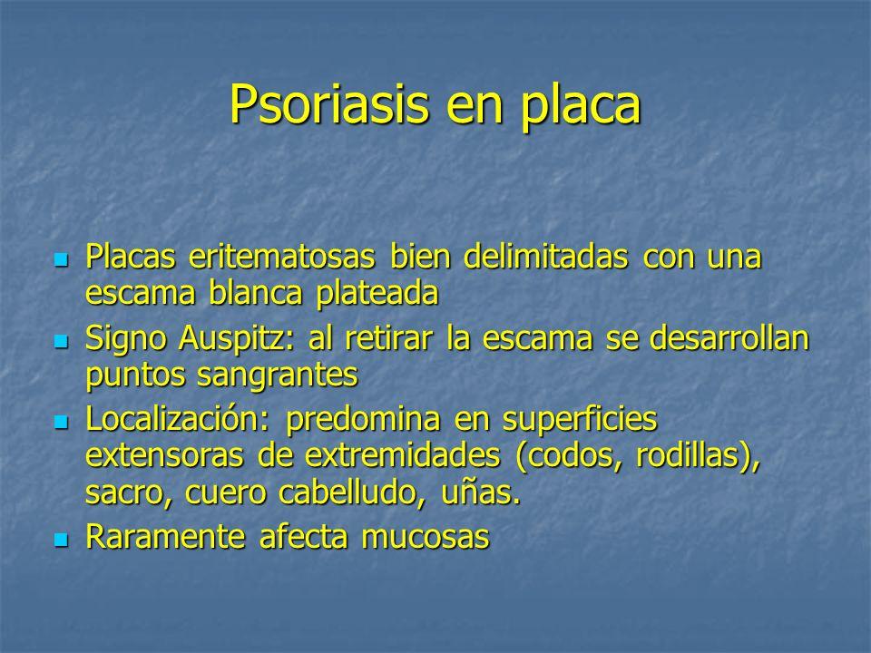 Psoriasis en placa Placas eritematosas bien delimitadas con una escama blanca plateada.