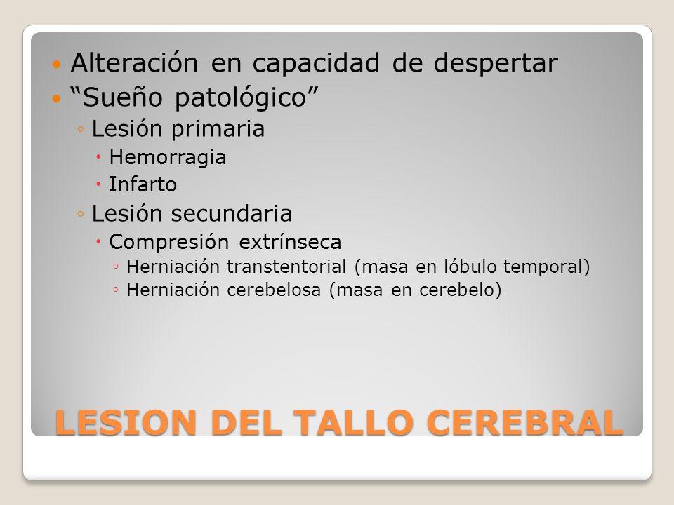 LESION DEL TALLO CEREBRAL
