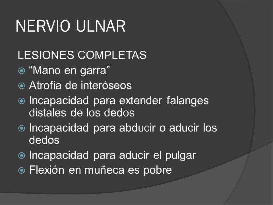 NERVIO ULNAR LESIONES COMPLETAS Mano en garra Atrofia de interóseos