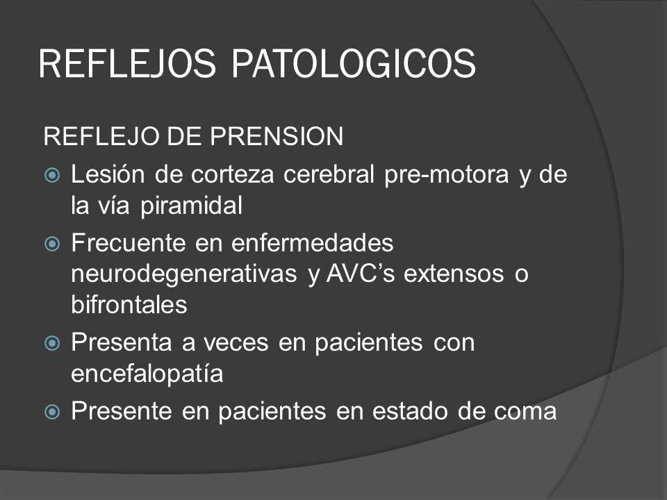 REFLEJOS PATOLOGICOS REFLEJO DE PRENSION