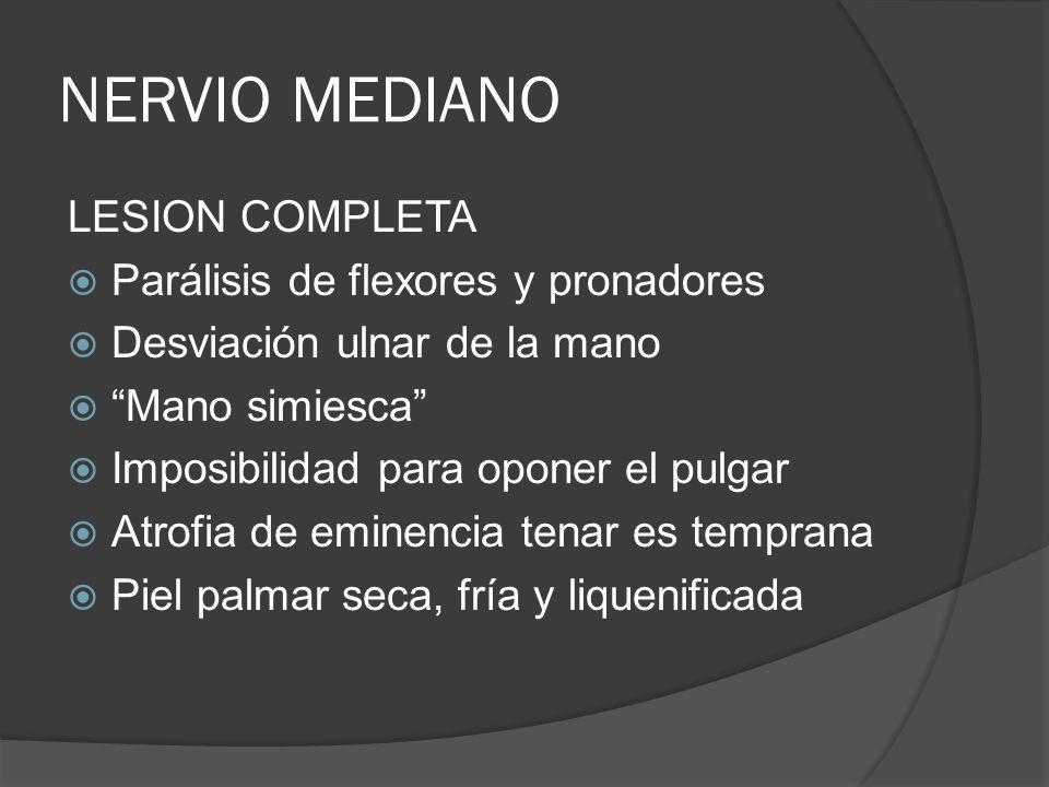 NERVIO MEDIANO LESION COMPLETA Parálisis de flexores y pronadores