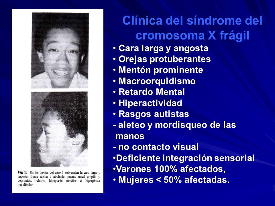 Clínica del síndrome del cromosoma X frágil