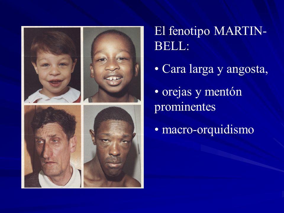El fenotipo MARTIN-BELL: