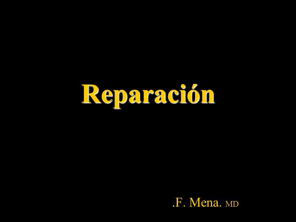 Reparación .F. Mena. MD