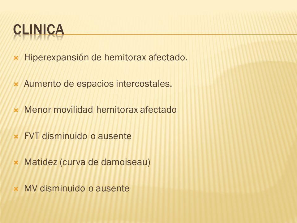 CLINICA Hiperexpansión de hemitorax afectado.