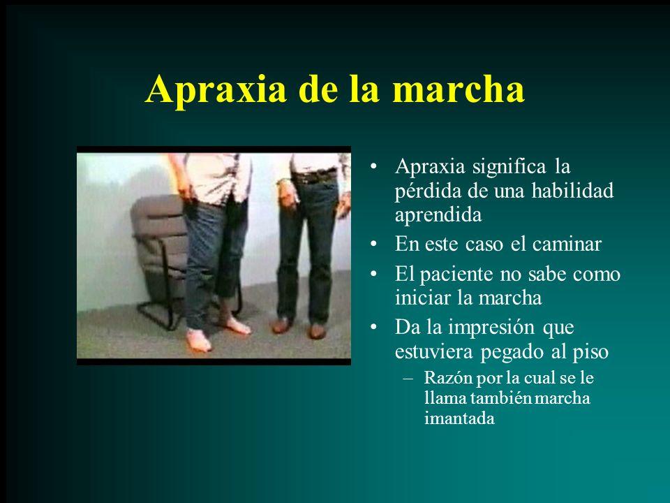 Apraxia de la marcha Apraxia significa la pérdida de una habilidad aprendida. En este caso el caminar.