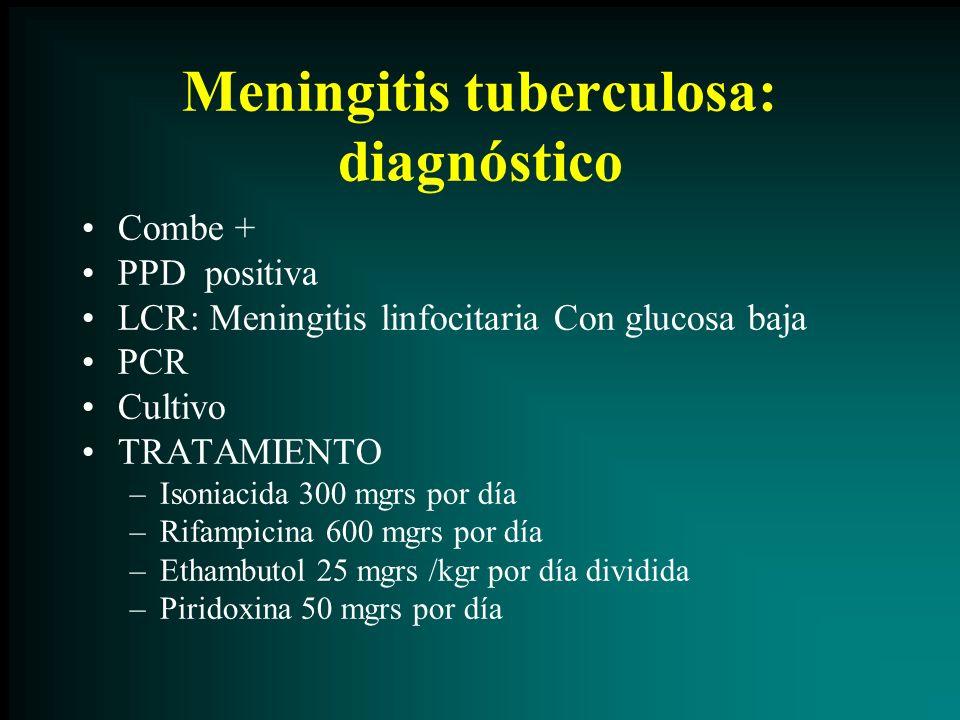 Meningitis tuberculosa: diagnóstico