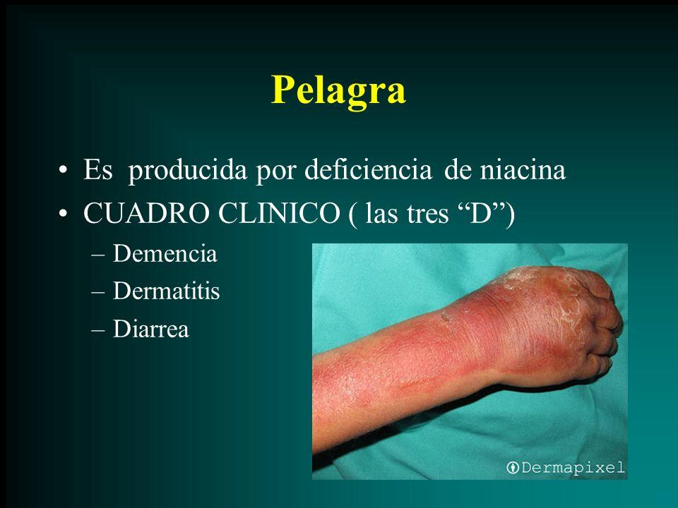 Pelagra Es producida por deficiencia de niacina