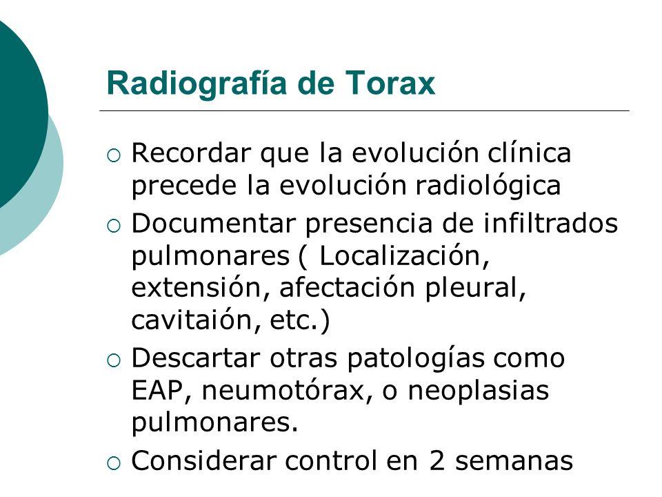 Radiografía de Torax Recordar que la evolución clínica precede la evolución radiológica.