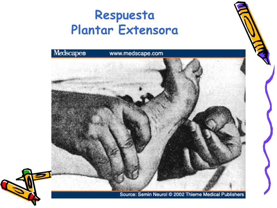 Respuesta Plantar Extensora
