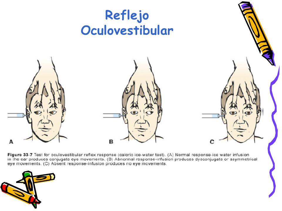 Reflejo Oculovestibular
