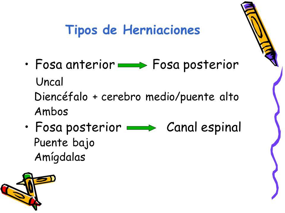 Fosa anterior Fosa posterior Uncal