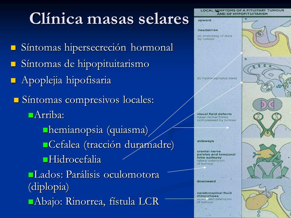 Clínica masas selares Síntomas hipersecreción hormonal