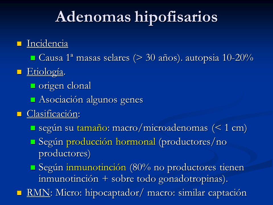 Adenomas hipofisarios