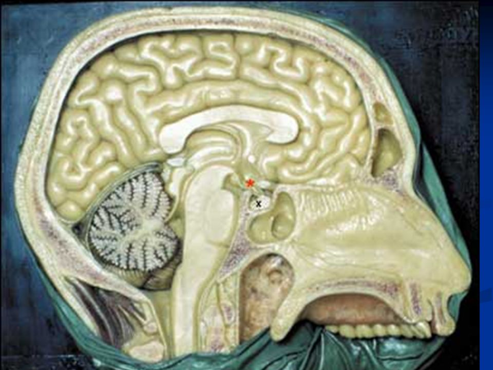 Área difusa del cerebro localizada en el piso y paredes del tercer ventrículo.